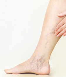 AVLC Varicose Vein Treatments