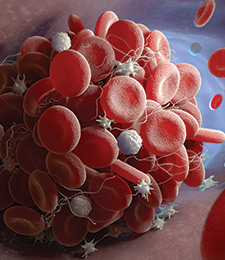 AVLC blood clot treatments