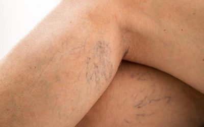 Are Spider Veins a Health Risk?