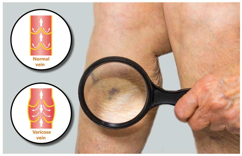 What Is Ultrasound Guided Sclerotherapy