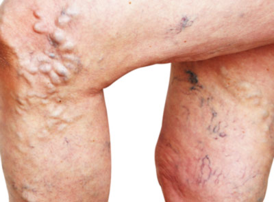 Traditional Sclerotherapy: Treating Vein Conditions