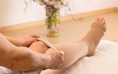 9 Tips to Reduce Your Risk of Varicose Veins and Spider Veins