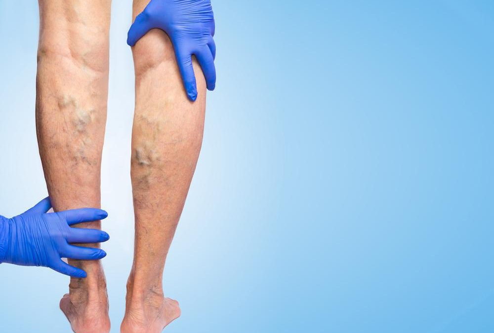 Removing Varicose Veins Has More Than Just Cosmetic Benefits