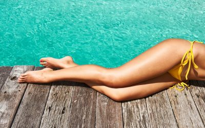 Sclerotherapy: The Spider Vein Treatment Option