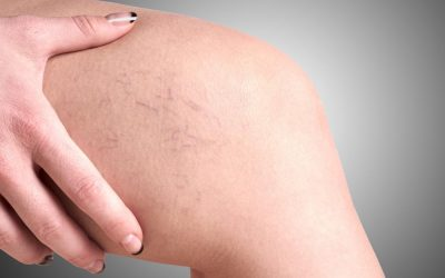 VNUS® RadioFrequency: A Minimally Invasive Treatment for Varicose Veins