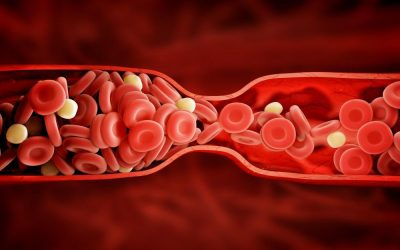 Spotting the Warning Signs of a Blood Clot